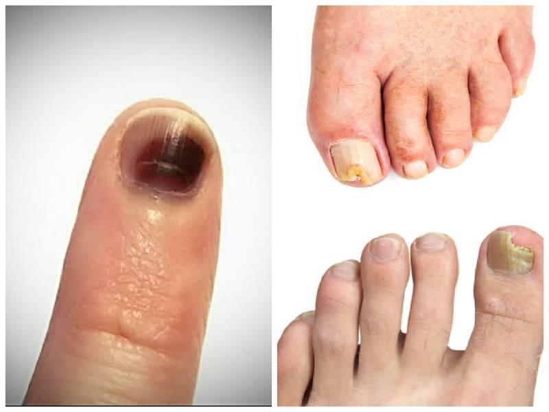 самое эффективное средство от грибка ногтей