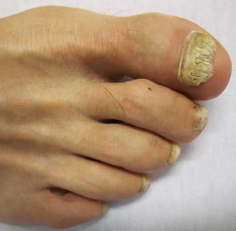 Псориаз ногтей: успешное лечение