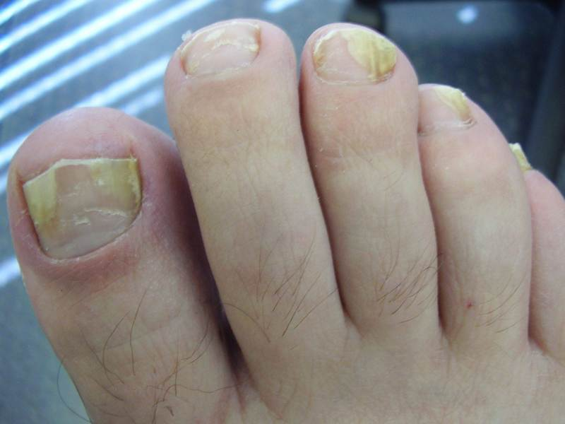 Как проявляются заболевания ногтей на ногах