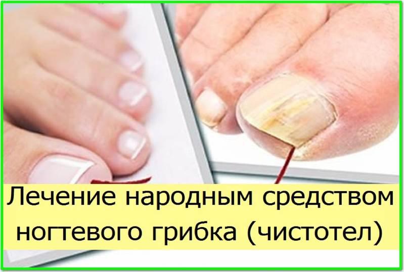 Болезни ногтей: симптомы и лечение