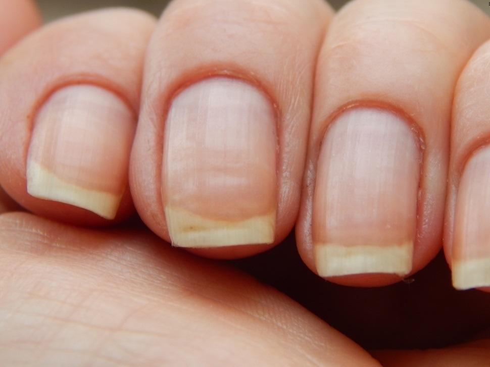 Почему появляются продольные бороздки на ногтях