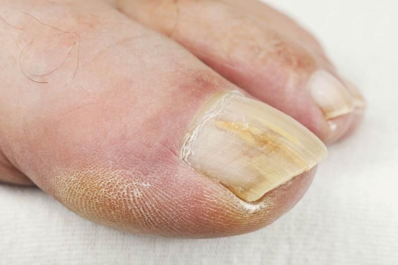 С чем связана болезнь ногтей на ногах