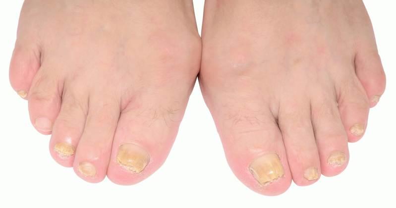 Предварительная диагностика болезней ногтей