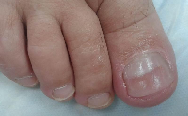 Почему появляются бороздки на ногтях