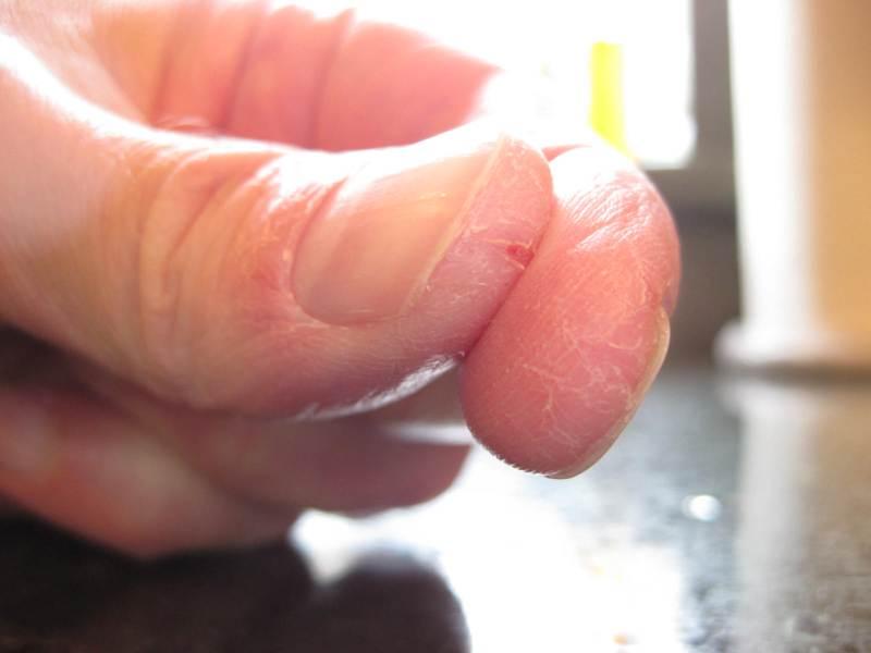 Трещины на ногтях рук: возможные причины возникновения и лечение