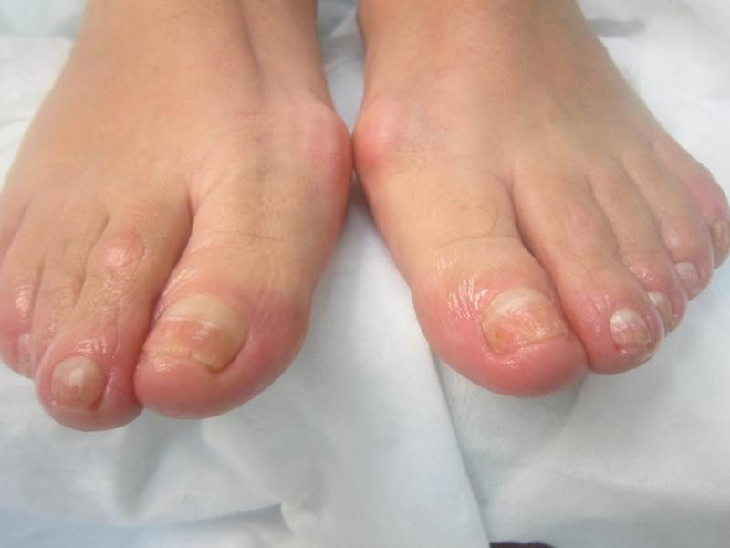 Какие причины деформации ногтей