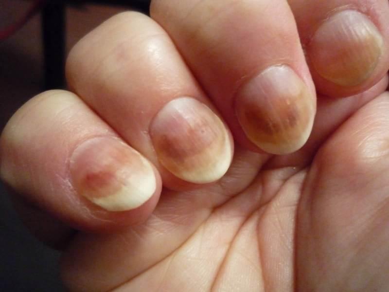 Какими могут быть заболевания ногтей на руках
