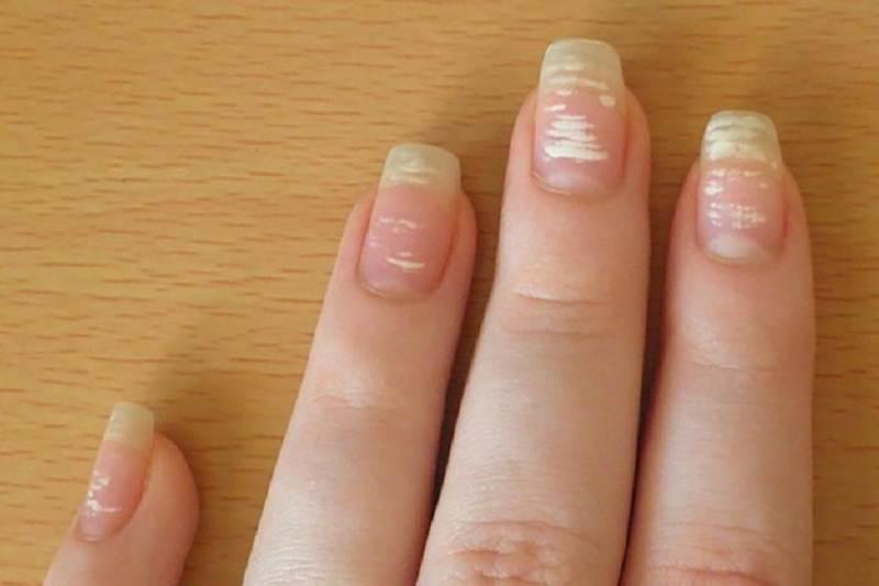 Почему появляются белые полосы на ногтях