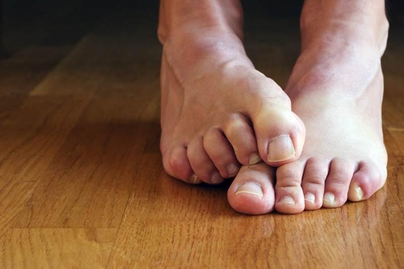 Почему болит ноготь на ноге