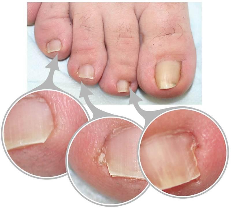 Лечение панариция ногтя