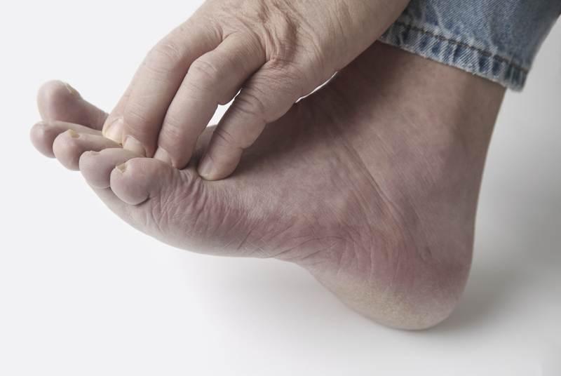 Почему отпадают ногти на руках и ногах