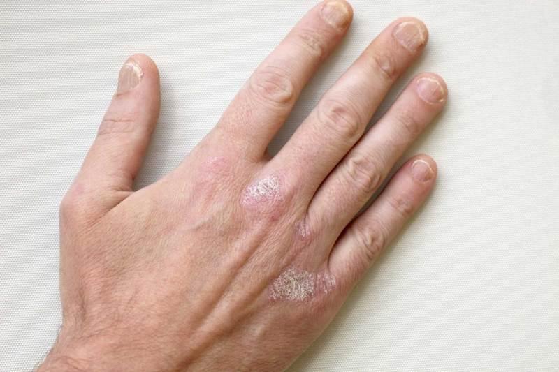 Симптомы и методы лечения псориаза ногтей