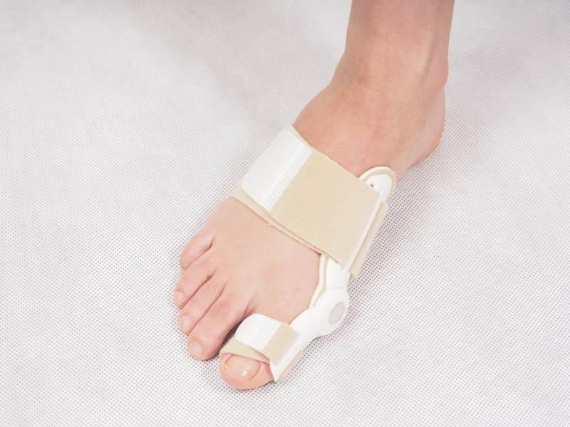 Эффективное лечение вросшего ногтя пластинами