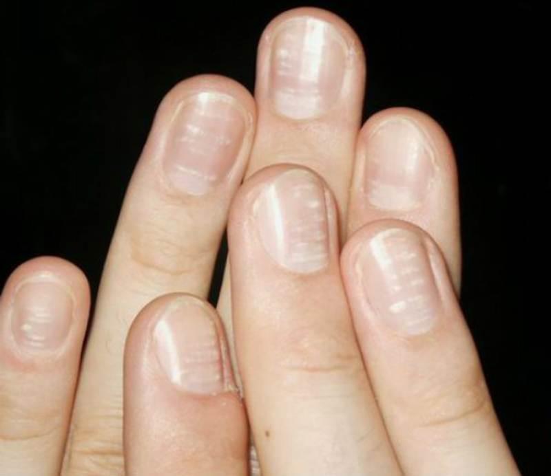 Причины появления продольных полос на ногтях