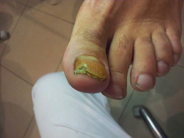 Чем избавится от грибка на пальце ноги