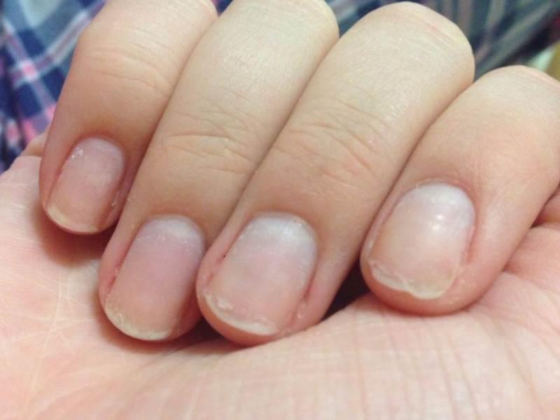 Причины появления поперечных бороздок на ногтях и способы их устранения