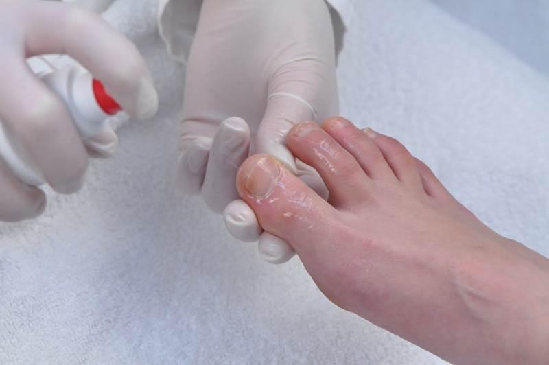 Причины вызывающие проблемы с ногтями